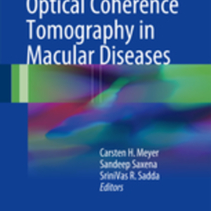 Spectral domain optical coherence tomography in macular.jpg